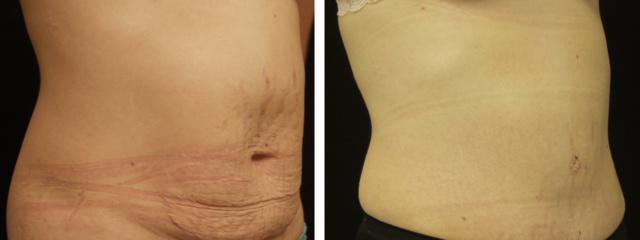Gallery image about tummy tuck