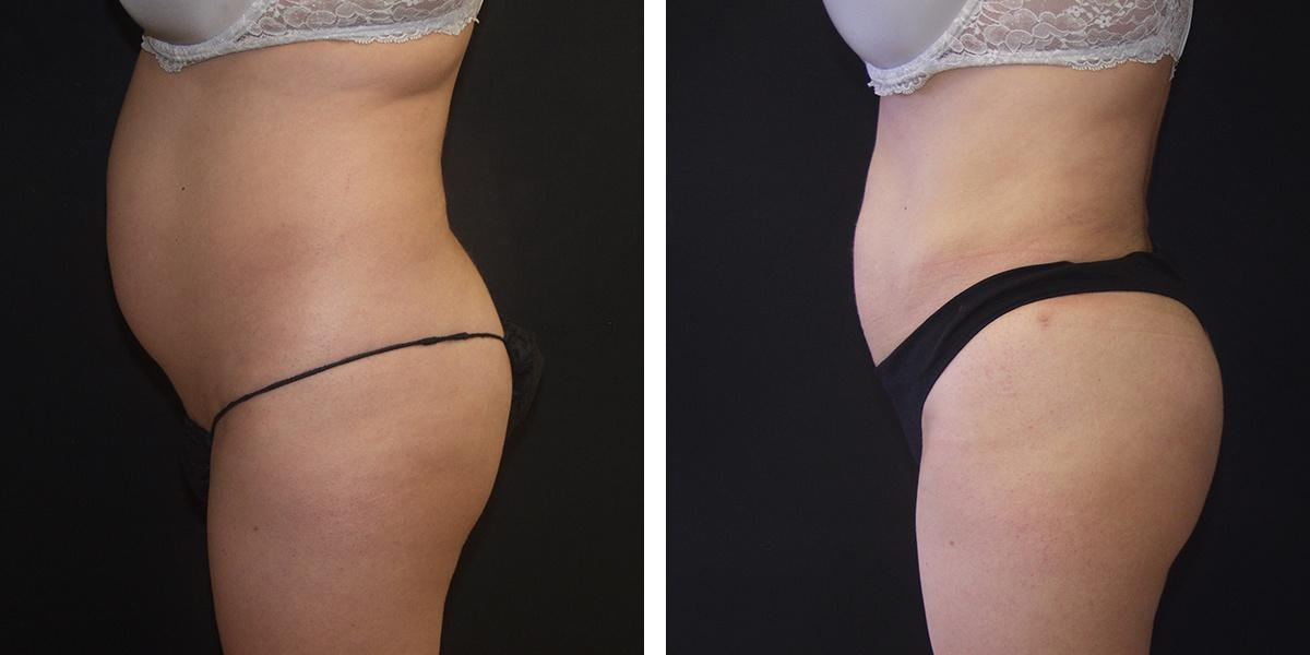 Gallery image about Butt Augmentation
