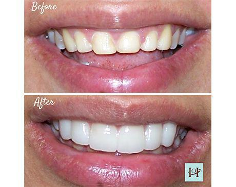 Gallery image about Veneers Gallery
