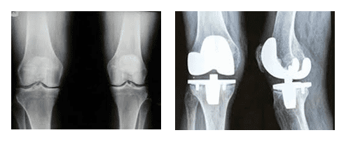 Regenerative Medicine vs. TKA