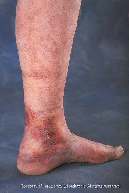 lower leg ulcer