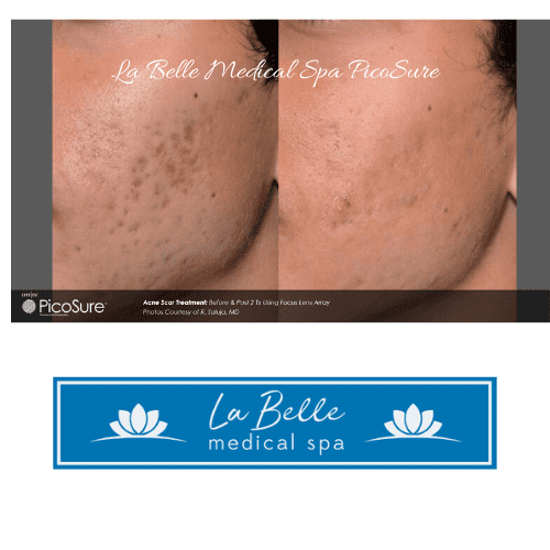 Before & after post 2 treatments using Focus Lense Array