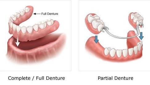 Complete vs. Partial Denture