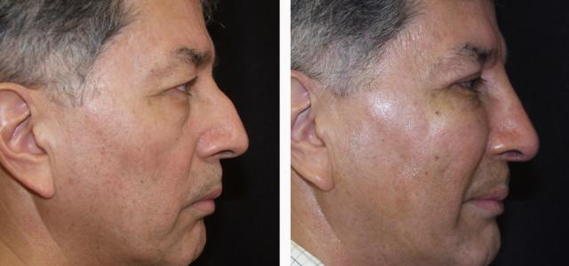 Gallery image about Non-Surgical Nose Job