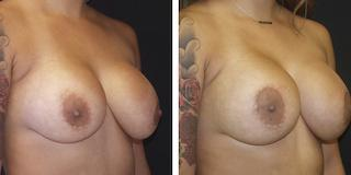 Gallery image about Breast Revision