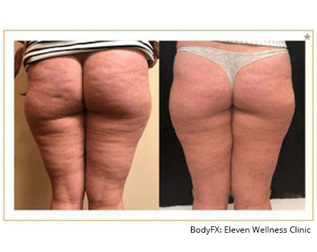 Gallery image about BodyFX, Body Sculpting, and Cellulite Reduction