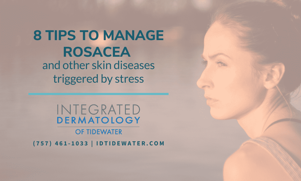 8 Tips to Manage Rosacea and Other Skin Diseases Triggered By Stress