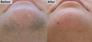 Laser Hair Removal Fairfield Ct Miami Fl