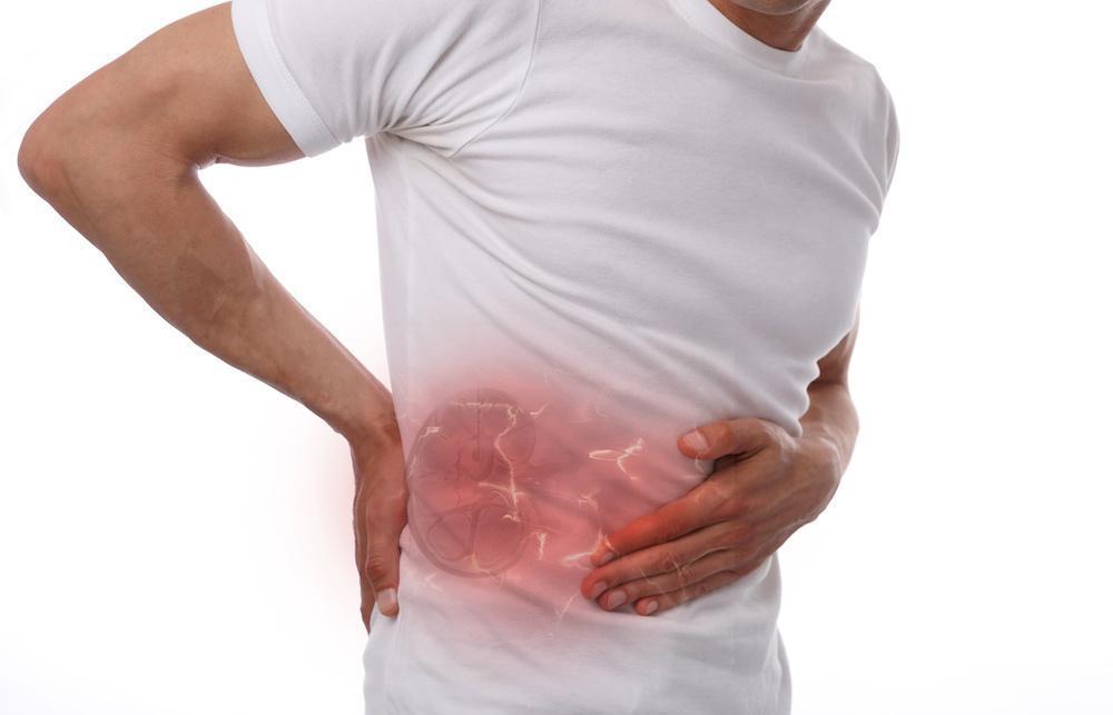 How We Treat Kidney Stones Arizona Urology Urologists