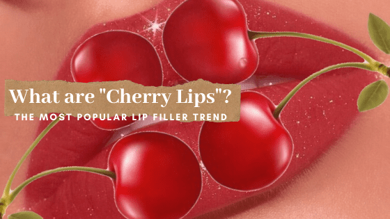 "How to get ""Cherry Lips"""