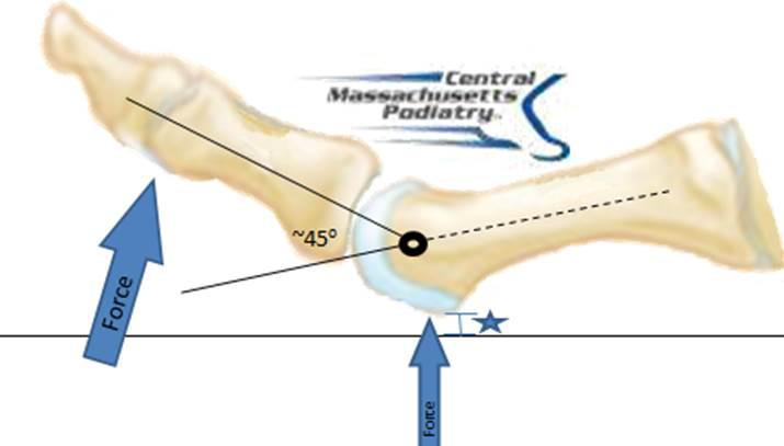 Functional Hallux Limitus Your Big Toe Movement Affects The Rest Of Your Foot And Body Central Massachusetts Podiatry Podiatrists