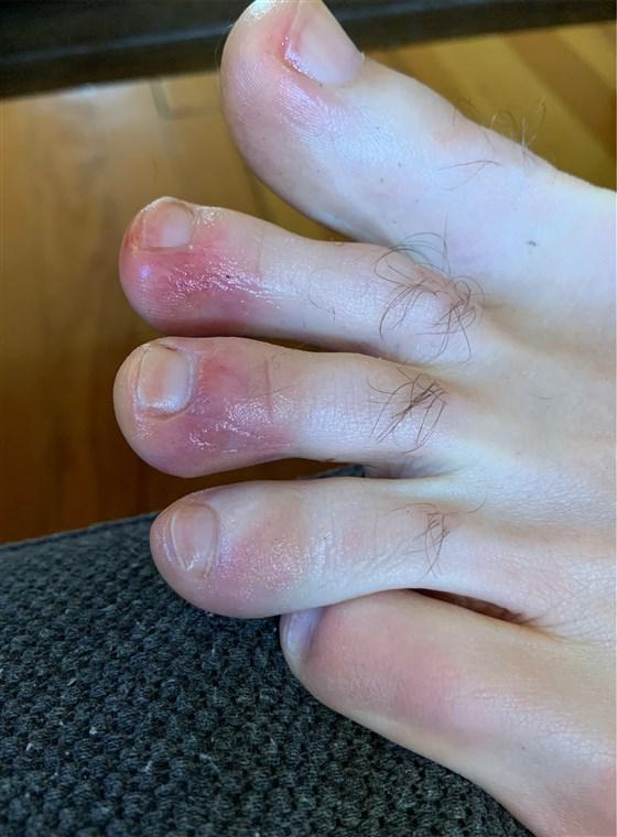 David, 39, said his condition, which appeared to be COVID toes, lasted for about a week.Courtesy of David