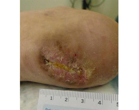 Gallery image about Achilles Wound 1