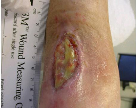 Gallery image about Achilles Wound 2