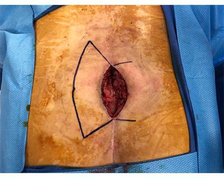 Gallery image about Back Wound 1
