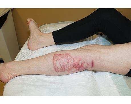Gallery image about Bovie Burn Leg With Theraskin