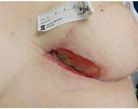 Gallery image about Breast Dehiscence A