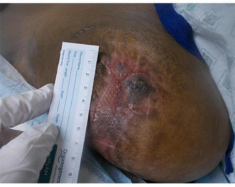Gallery image about Breast Wound After