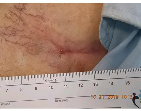 Gallery image about Chest Wound Pacemaker