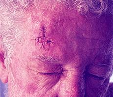 Absolute Dermatology Skin Cancer Center Dermatologists Glen Allen Va