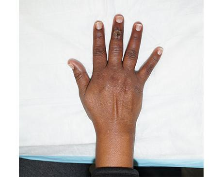 Gallery image about Finger Wound With Skin Graft