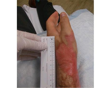 Gallery image about Hand Burn
