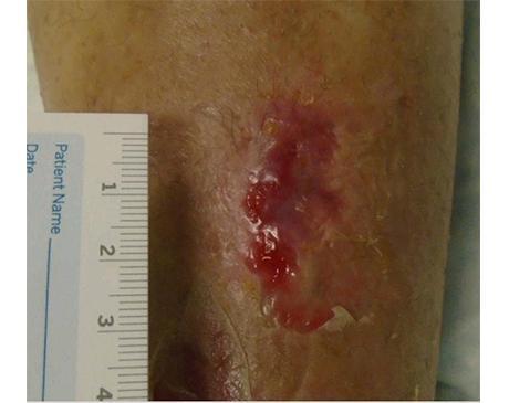 Gallery image about Hematoma Leg Wound
