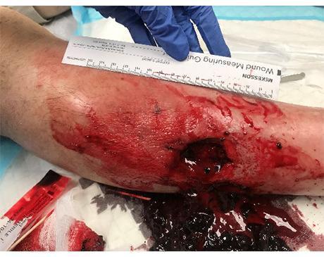 Gallery image about Hematoma Leg Wound 2
