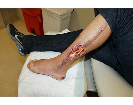 Gallery image about Leg Wound And VAC