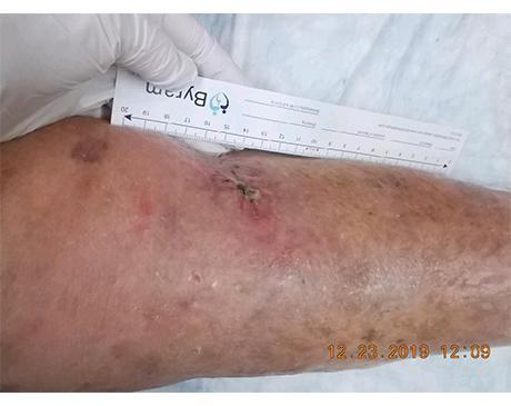 Gallery image about Leg Wound Debridement And Compression