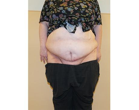 Gallery image about Panniculectomy