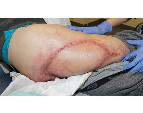 Gallery image about Posterior Thigh Flap