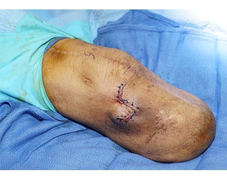Gallery image about Rhomboid Flap 1