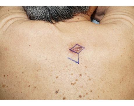 Gallery image about Rhomboid Flap 3