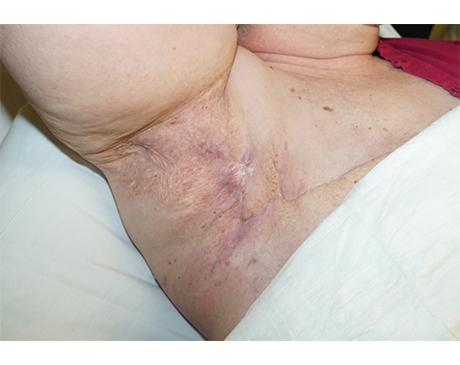 Gallery image about Rhomboid Flap 4