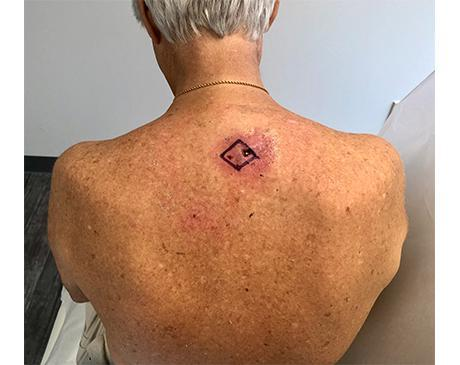 Gallery image about Rhomboid Flap 5