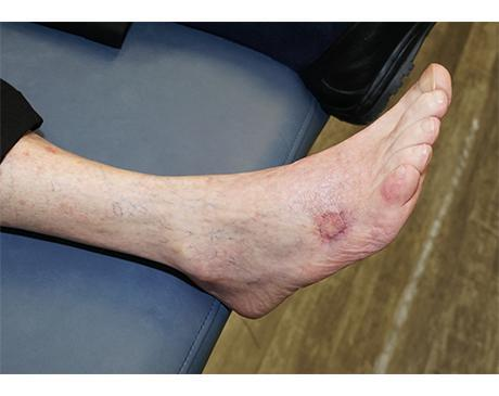 Gallery image about Skin Graft to Foot, Basal Cell Cancer
