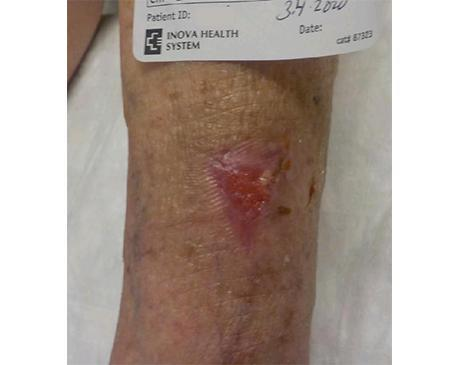 Gallery image about Venous Leg 1