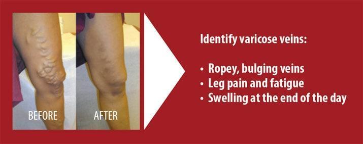 doare sub genunchi varicoză predispoziția la prevenirea varicoasă
