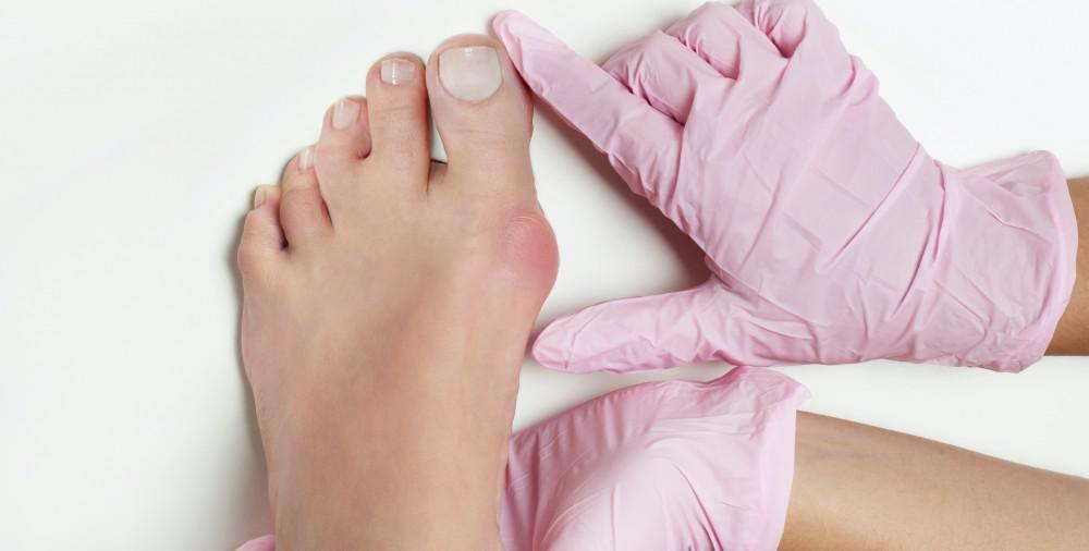 Your Bunion