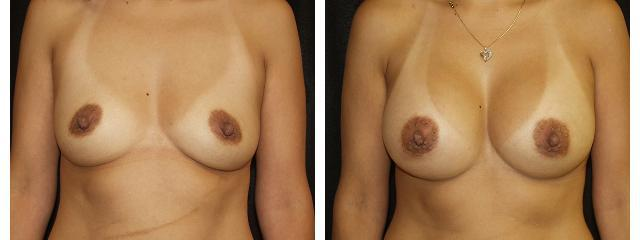 Gallery image about Breast Augmentation