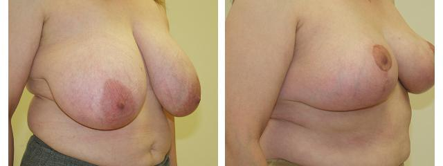 Gallery image about Breast Reduction