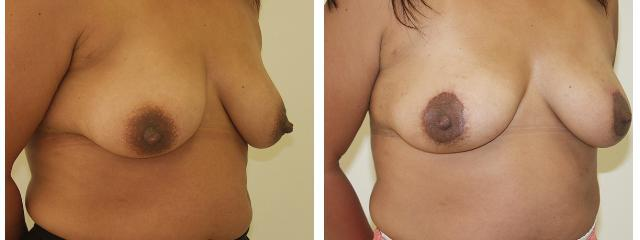 Gallery image about Breast Lift