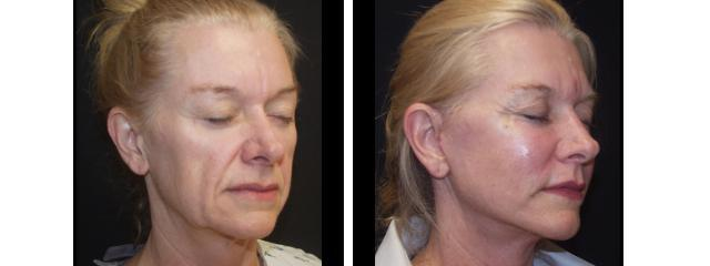 Gallery image about Face Lift