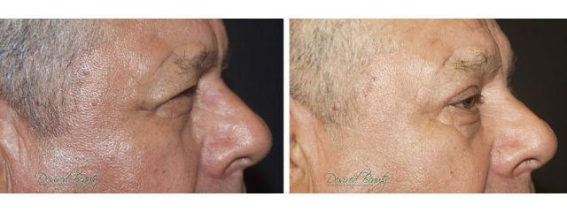 Gallery image about Blepharoplasty
