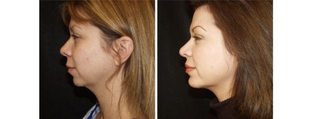 Gallery image about Chin Surgery