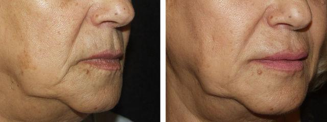 Gallery image about Wrinkle Filler