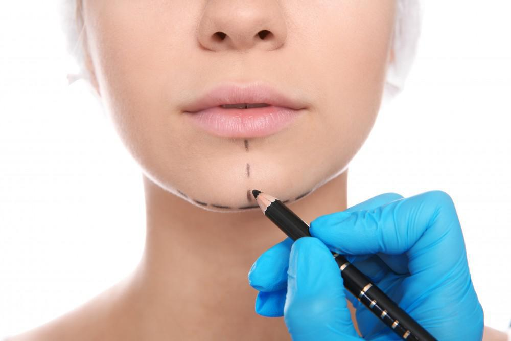 doctor drawing on woman's chin