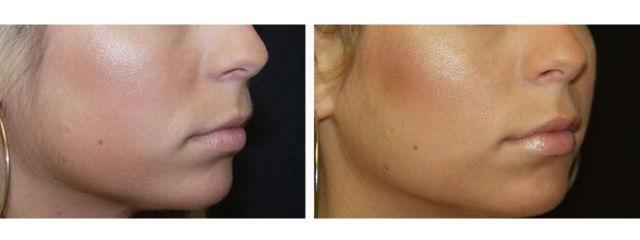Gallery image about Lips