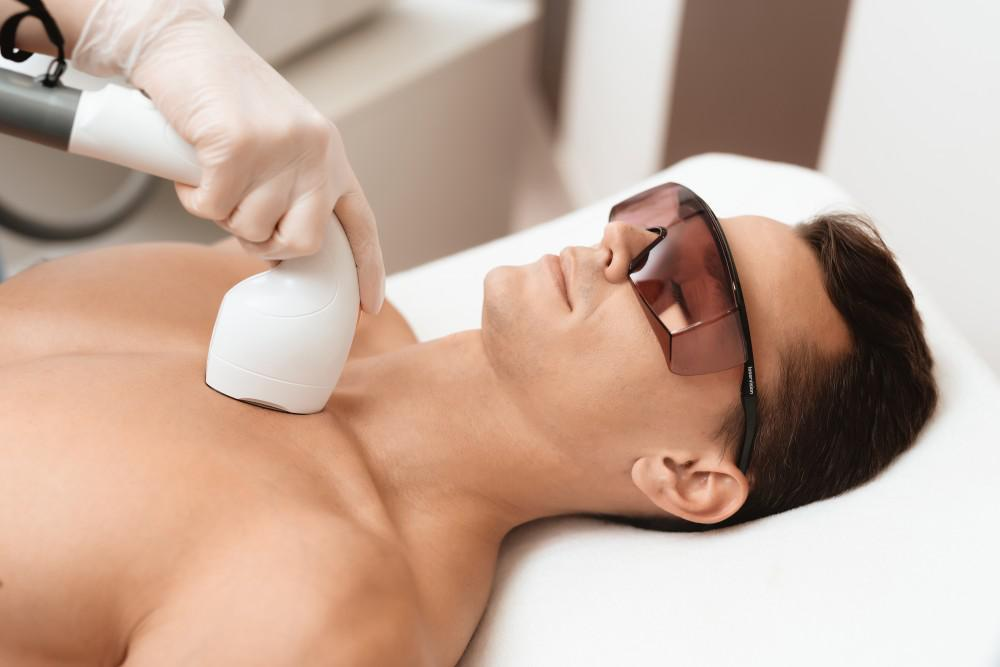 Chest laser hair removal